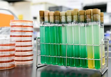 1. 細菌検査